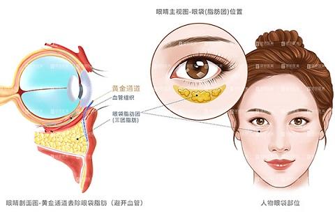 《【金牛3品牌】杭州健丽医美祛眼袋成效怎么样?》